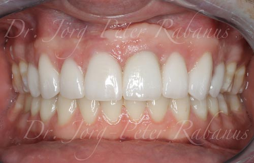 after-smile-design-with-porcelain-veneers-on-dental-implant