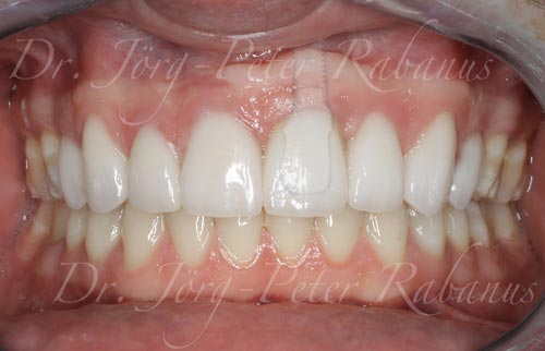 porcelain-veneers-and-dental-implant-after