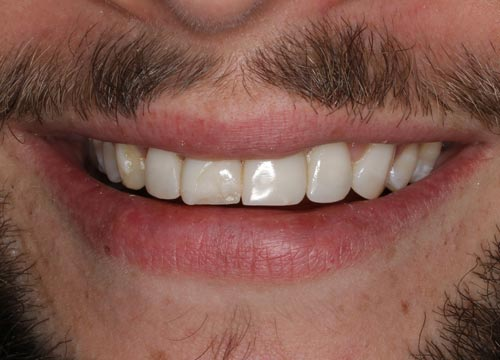 smile-porcelain-veneers-and-dental-implant-before