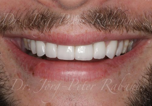 new-smile-with-dental-laminates-and-implant-tooth