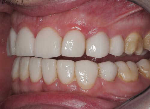 biological width violation after porcelain veneer placement