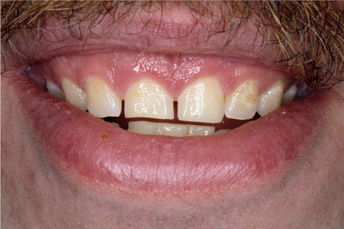 gummy smile before porcelain veneers and gum lift