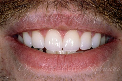 gummy smile after porcelain veneers and gum lift