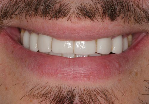 porcelain veneers made in Costa Rica