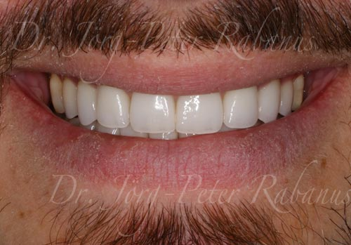 porcelain veneers made in San Francisco