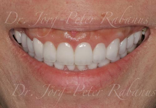new smile with porcelain veneers