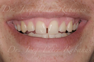 spaces between teeth before smile design with porcelain veneers