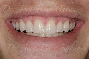 Spaces between teeth eliminated by smile design with porcelain veneers