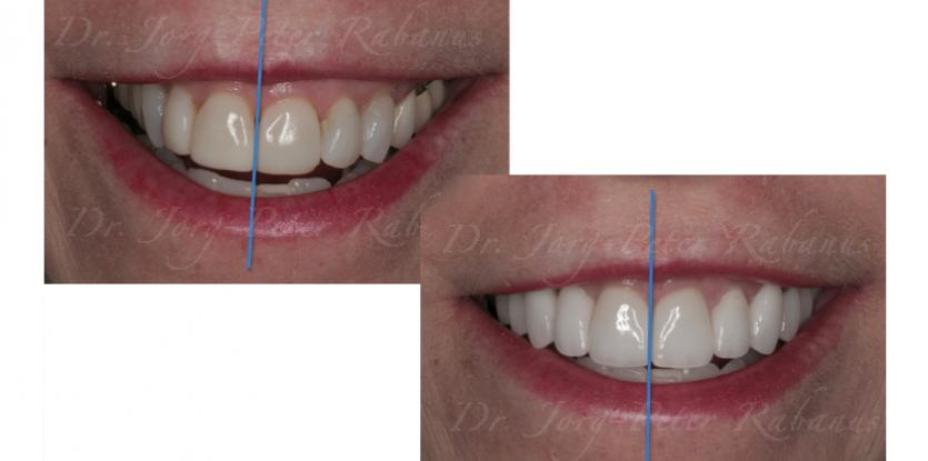porcelain veneers to correct dental midline