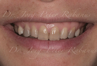 Tetracycline-stained Teeth without Porcelain Veneers