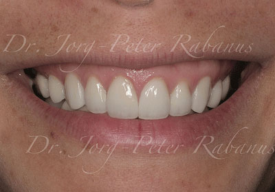 tetracycline-stained teeth after porcelain veneers